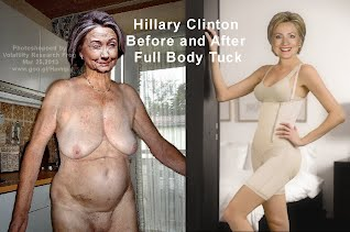 Hillary Clinton Front Before and After Full Body Tuck (Volatility Research) 1000h