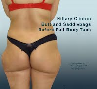 Hillary Clinton BUTT and SADDLEBAGS Before Full Body Tuck (Volatility Research) 1000h