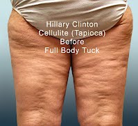 Hillary Clinton Cellulite Tapioca Before Full Body Tuck (Volatility Research) 1000h