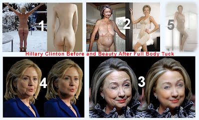 Hillary Clinton Before and BEAUTY After Full Body Tuck (Volatility Research) 1000h