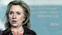 I had a ROUGH night says Hillary Clinton Before Face Lift (Volatility Research) 1000h59