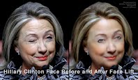 Hillary Clinton Face Before and After Face Lift (Volatility Research) 1000h.jpg