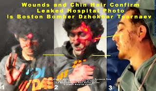 PROOF Wounds and Chin Hair Confirm Leaked Hospital Photo is Boston Bomber Dzhokhar Tsarnaev (Volatility Research)-1 1500h.jpg
